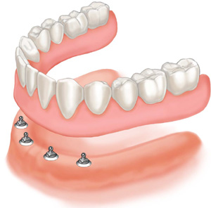Ball-and-Socket-Dental-Implants
