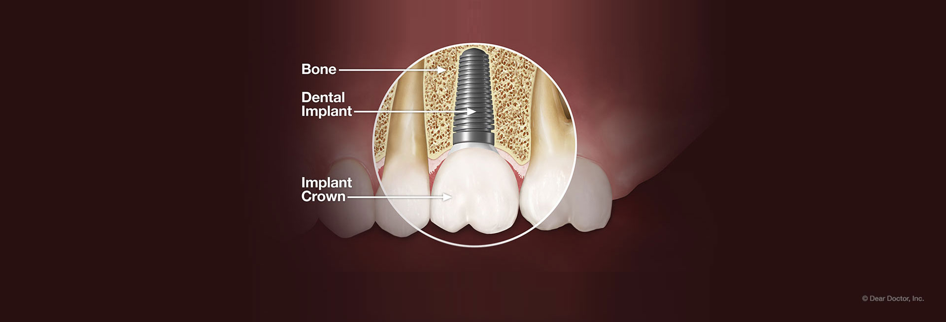 dear-doctor-dental-implant-banner2